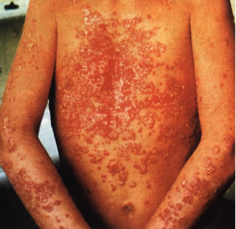 ulei de argan psoriazis simptome tbc