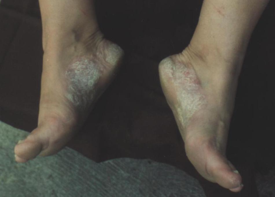 simptome poliartrita reumatoida simptome