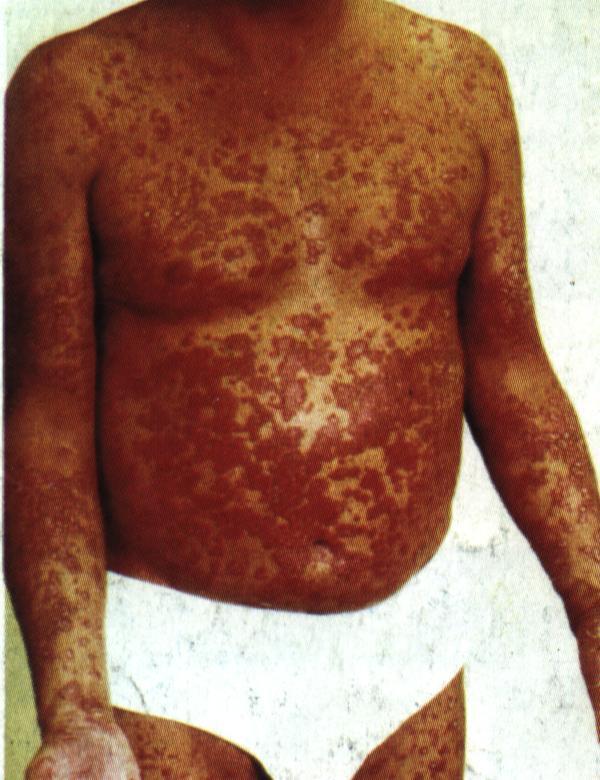 crema emolienta pentru dermatita atopica poze haioase