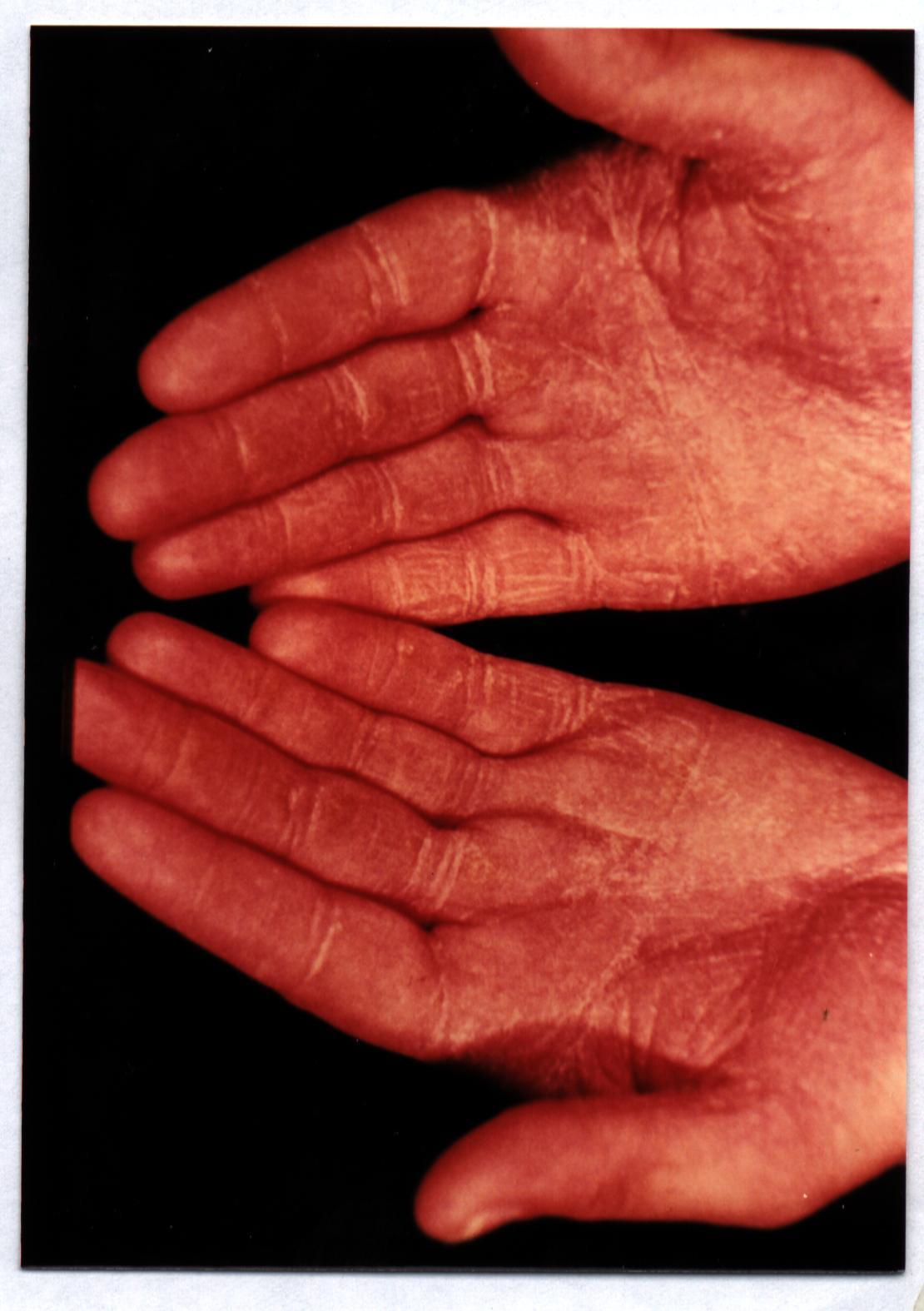 dermatita seboreica fata poze smechere de profil
